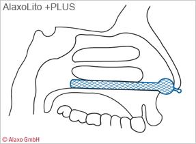 AlaxoLito PLUS (insertion diagram)